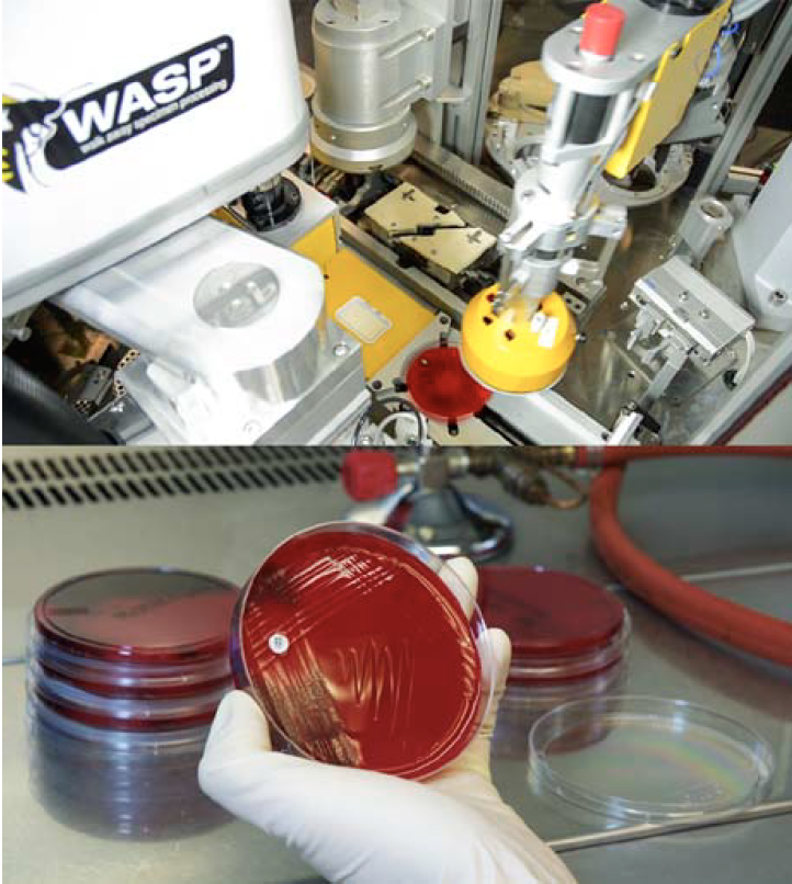 COPAN WASP ID Disc Application Feature Allows for Complete Automation in the Specimen Setup Process